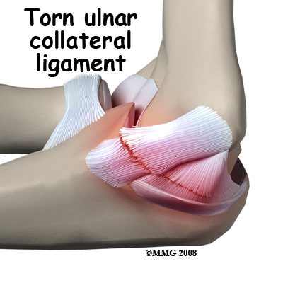 elbow_ucl_injury_causes01